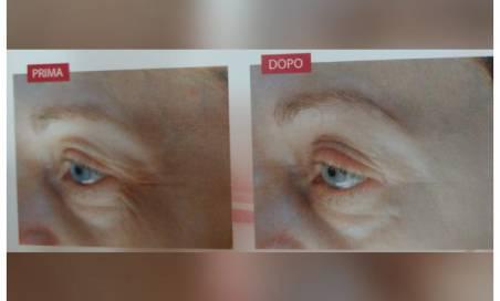 Offerta trattamento rughe del viso